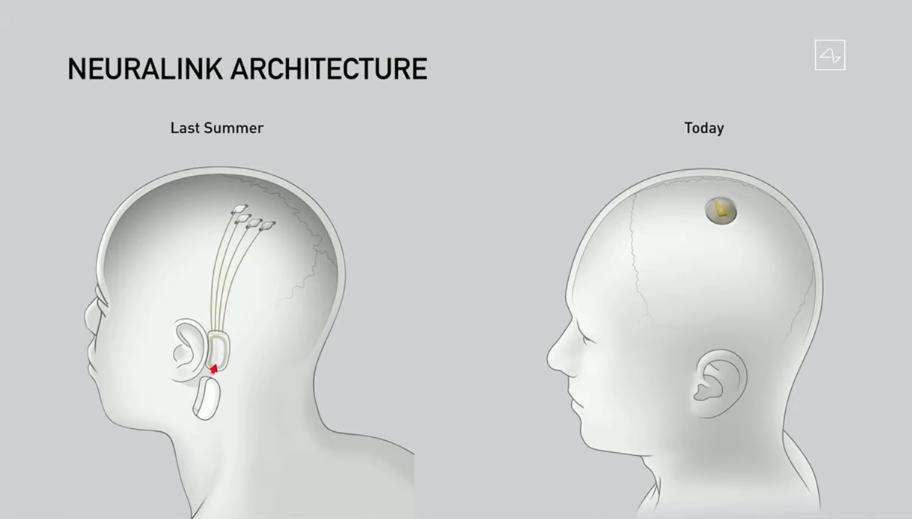 Source: Neuralink Progress Update (screenshot)